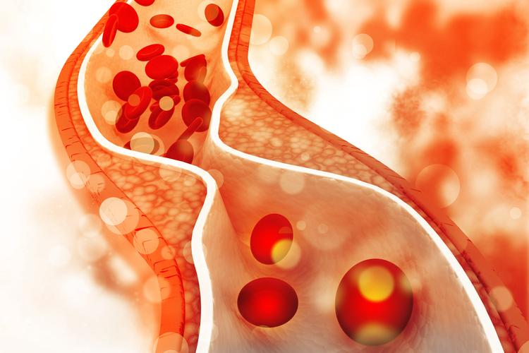 Trà sen giảm lượng cholesterol, giúp ngăn ngừa nguy cơ bệnh tim mạch