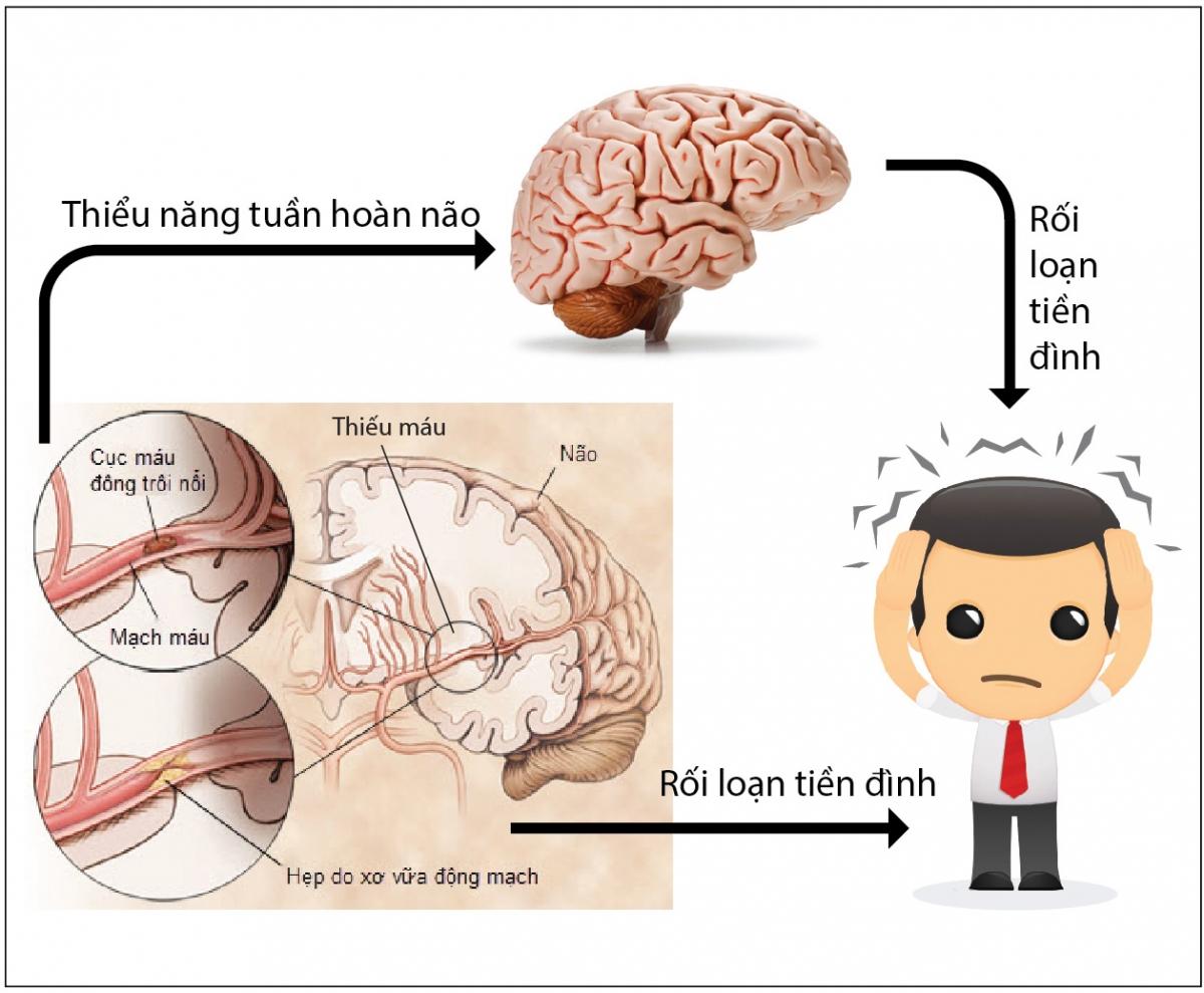 trà tam thất hỗ trợ điều trị rất tốt các triệu chứng liên quan đến rối loạn tuần hoàn não