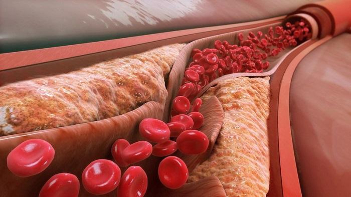 Uống trà hoa lài còn có tác dụng giảm cholesterol xấu